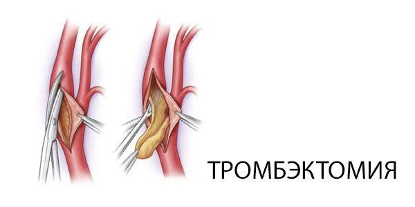 Всё про тромбэктомию геморроидальных узлов