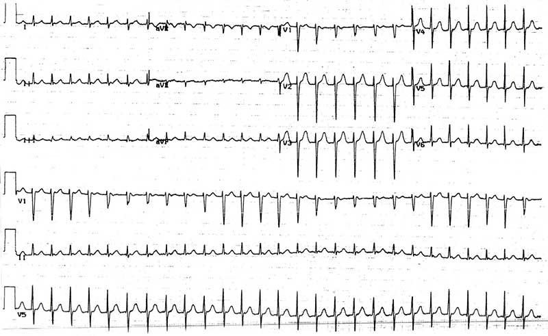 Суправентрикулярная тахикардия с альтернациями. Обратите внимание на фазовый характер морфологии QRS, особенно в полосе отведения V1.