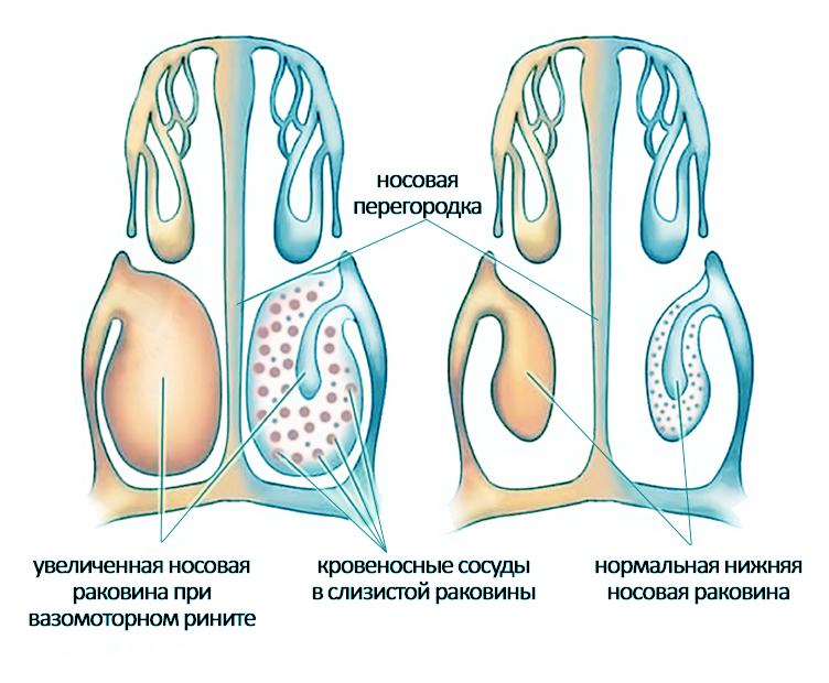 vazomotornyj