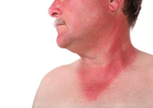 солнечный ожог на лице у мужчины