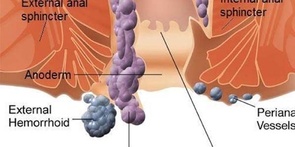 Как вылечить геморройные шишки