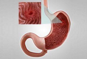 Как болит при язве желудка